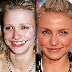 Celebrities-without-makeup