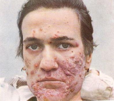 Bad_acne-12486